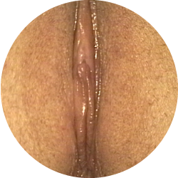 Normal_Labia4-01